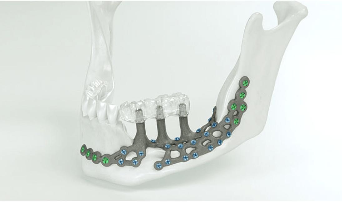 IPS Implants Preprosthetic (KLS Martin)